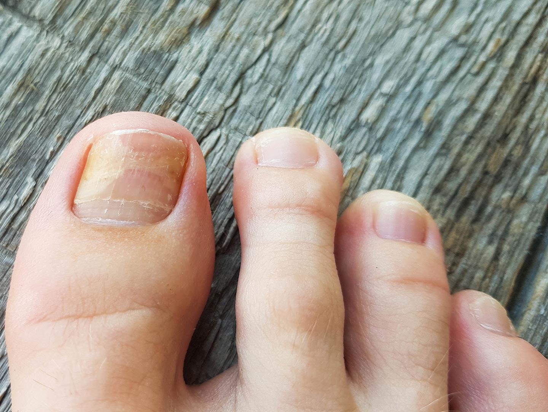 Gljivična infekcija nokta