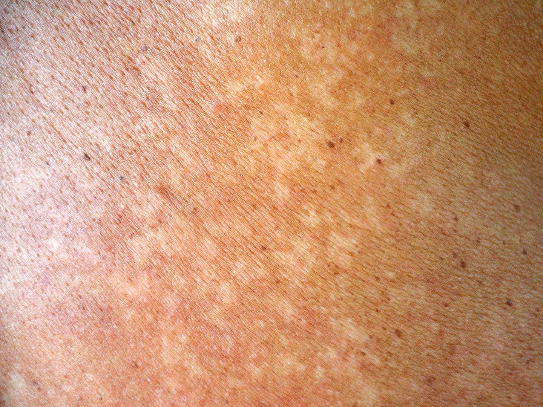 Infekcija kože gljivicom Malassezia furfur